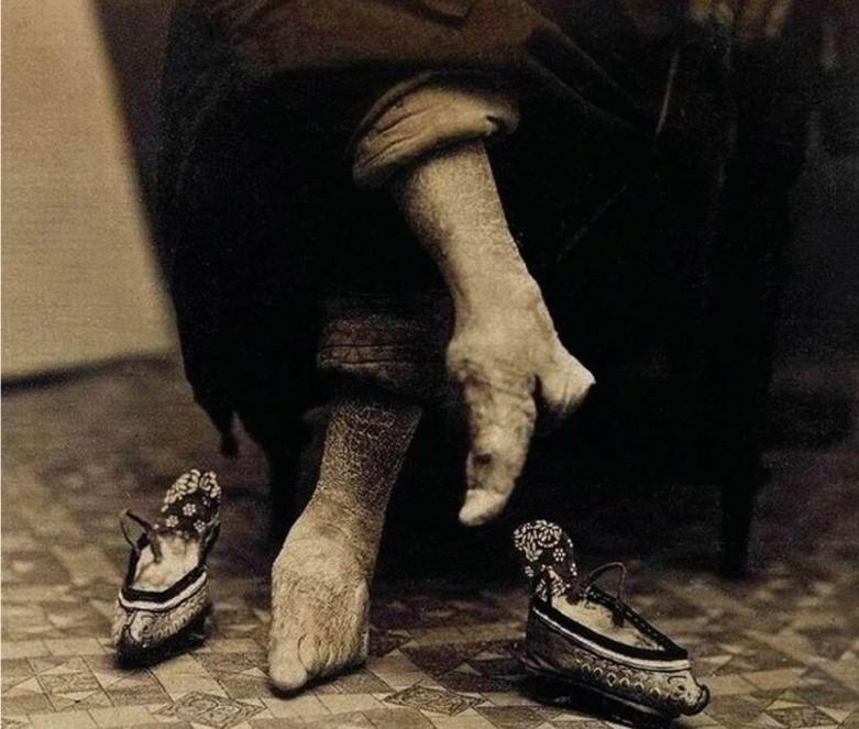 Перевязка ступней