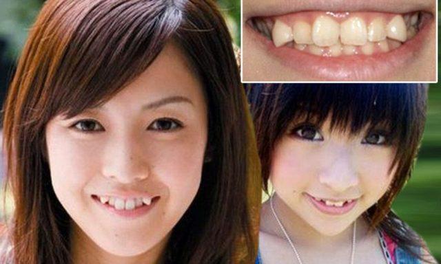 Поддельные клыки в Японии