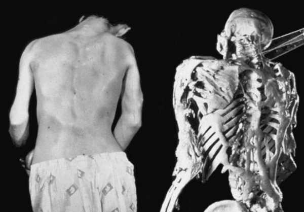 Синдром каменного человека