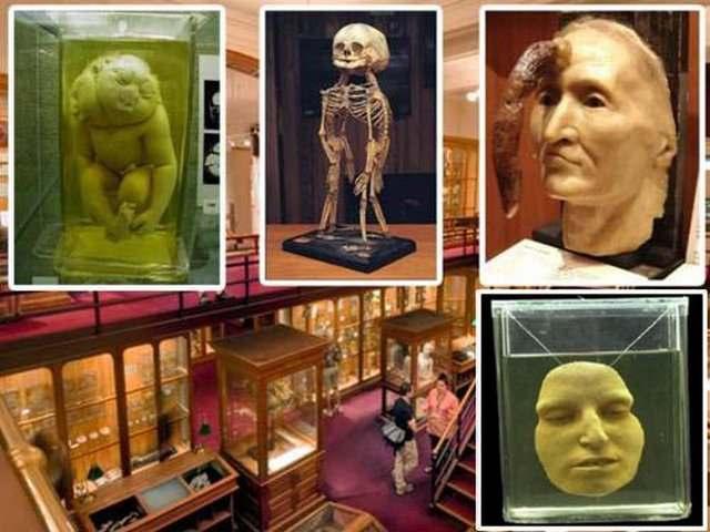 Музей медицины Мюттера, США