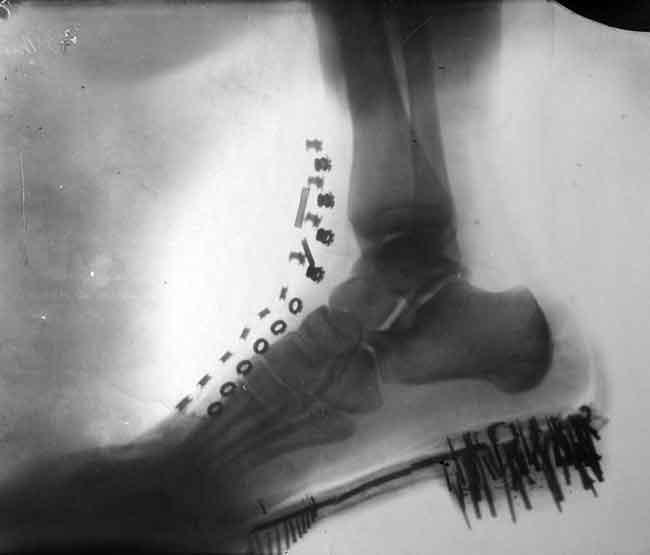 снимок ботинка Теслы рентген