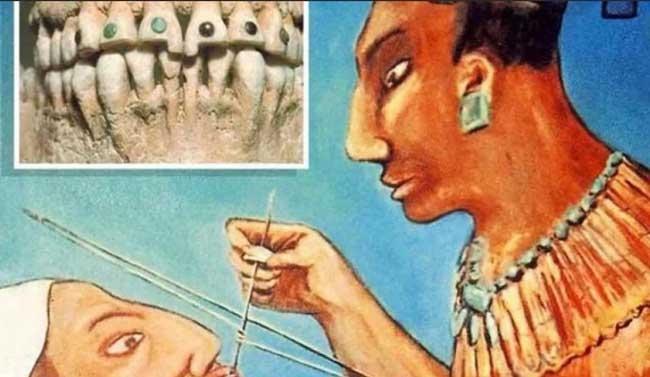Египетский опыт стоматологии